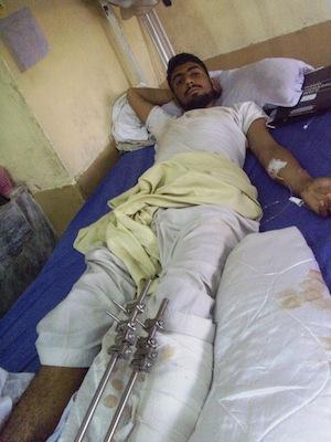 Victim of a drone strike lies in a hospital bed in Pakistan's North Waziristan Agency. Credit: Ashfaq Yusufzai/IPS