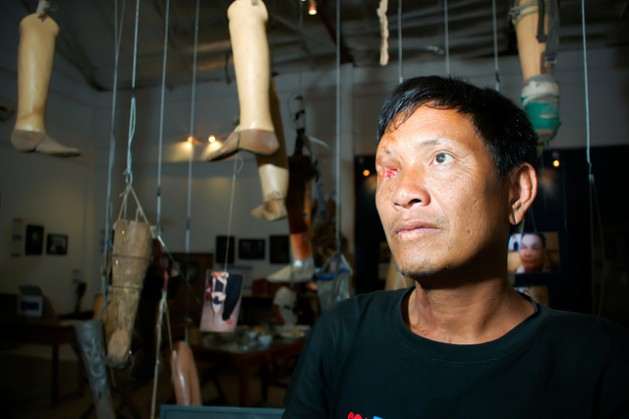 Ta Doangchom, a Laotian cluster bomb victim, beside homemade prosthetic limbs in the Cooperative Orthotic and Prosthetic Enterprise (COPE) National Rehabilitation Centre in Vientiane. Credit: Irwin Loy/IPS
