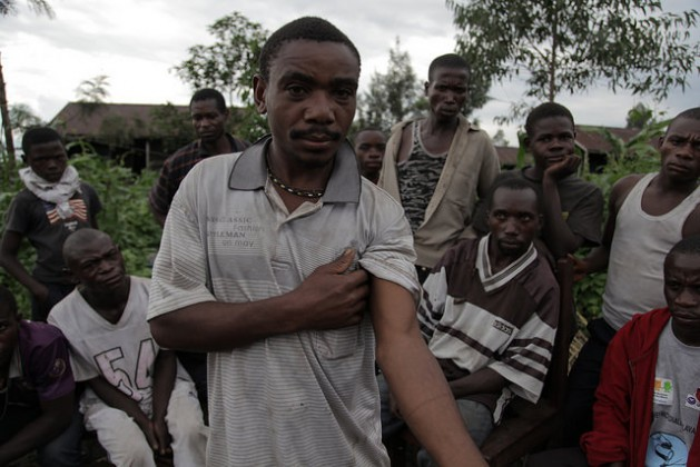 A man from the community of Mudja holds out his arm to show where he was injured by a park ranger. Credit: Zahra Moloo/IPS