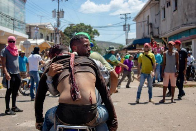 A young man wounded by a bullet during protests in Santa Elena de Uairén is transported on a motorcycle by other young opposition demonstrators during protests after food and medical aid was prevented on Feb. 23 from entering the country from nearby Brazil, 1,260 kilometers southeast of Caracas. Credit: Courtesy of local residents of Santa Elena de Uairén